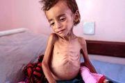 هشدار سازمان بهداشت جهانی در مورد وضع وخیم یمن