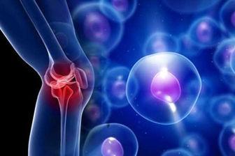 مکمل های درمان درد مفاصل