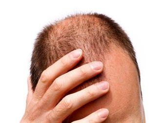 عوارض وحشتناک کاشت مو را بشناسید