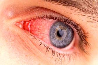 ژن درمانی نویدبخش بیماران چشمی
