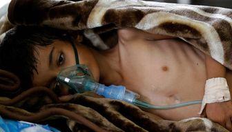 یمن از گرسنگی در حال مرگ است