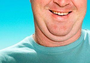 رفع چربی گردن با این روشهای بسیار ساده