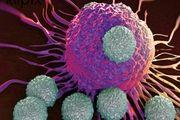 کُشندهترین سرطان در ایران