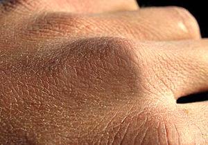 8 حرکت برای از بین بردن خشکی پوست