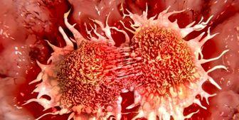 شناسایی هورمونهای مرتبط با سرطان پروستات در مردان