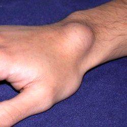 علت بیماری گانگلیون چیست؟
