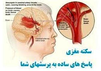 عواملی که باعثسکته مغزی میشود