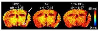 روشی برای اندازهگیری میزان اسیدیته مغز