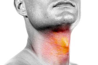 اصلی ترین دلیل بروز سرطانهای نواحی سر و گردن