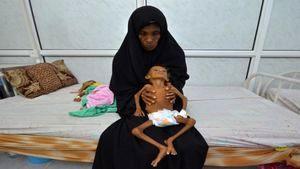 سوء تغذیه جان 85 هزار کودک یمنی را گرفت
