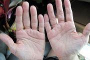 چرا انگشتان دستمان ورم می کند؟