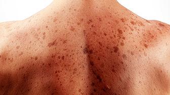 سرطان پوست؛ بیماری مرگبار مردان